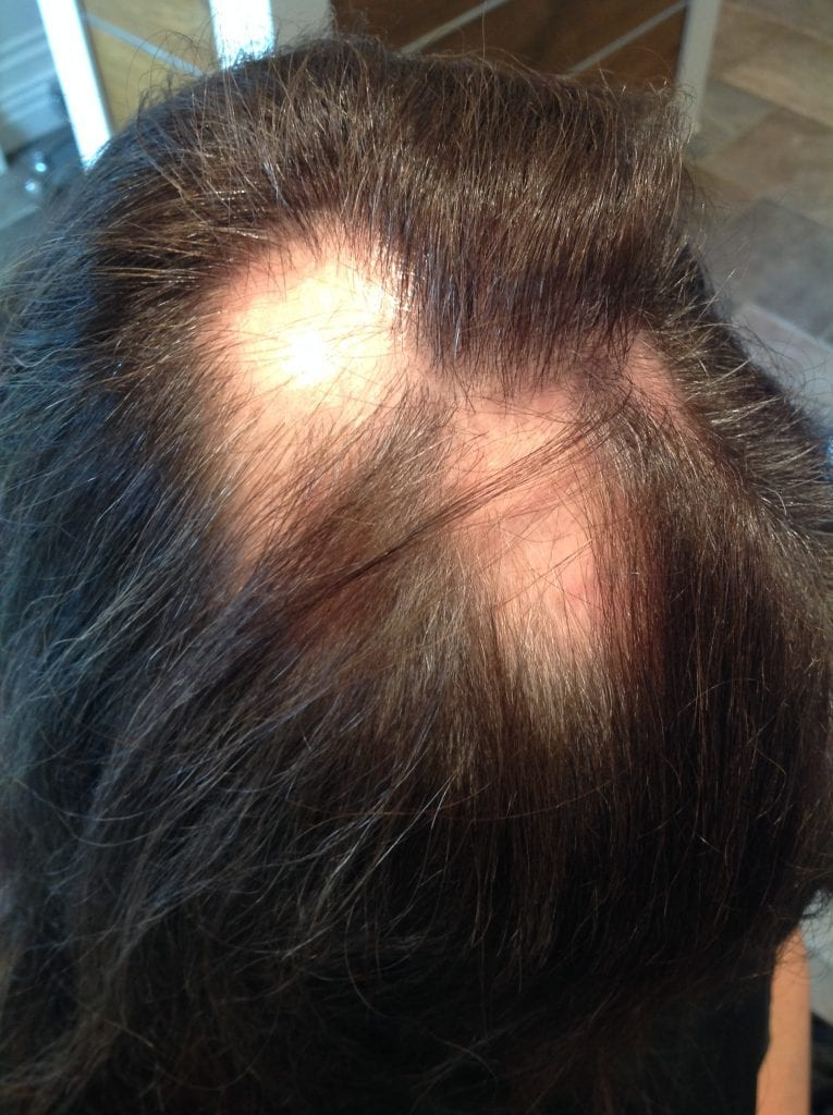 Alopecia Hair Loss